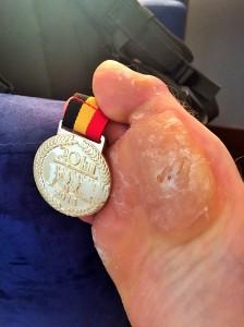 Lovely runner's foot...